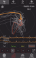 Preview: Mantis X8 Archery shooting analysis system